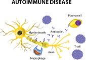 Autoimmune Disease. The mechanisms of neuronal damage in multiple sclerosis