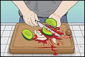"""""""Avocado Hand"""" Safety Hazard, How Not To Cut An Avocado"""