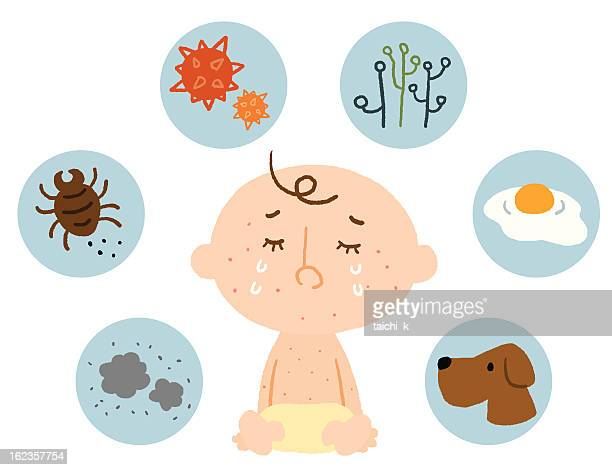 baby allergy - pollen stock illustrations