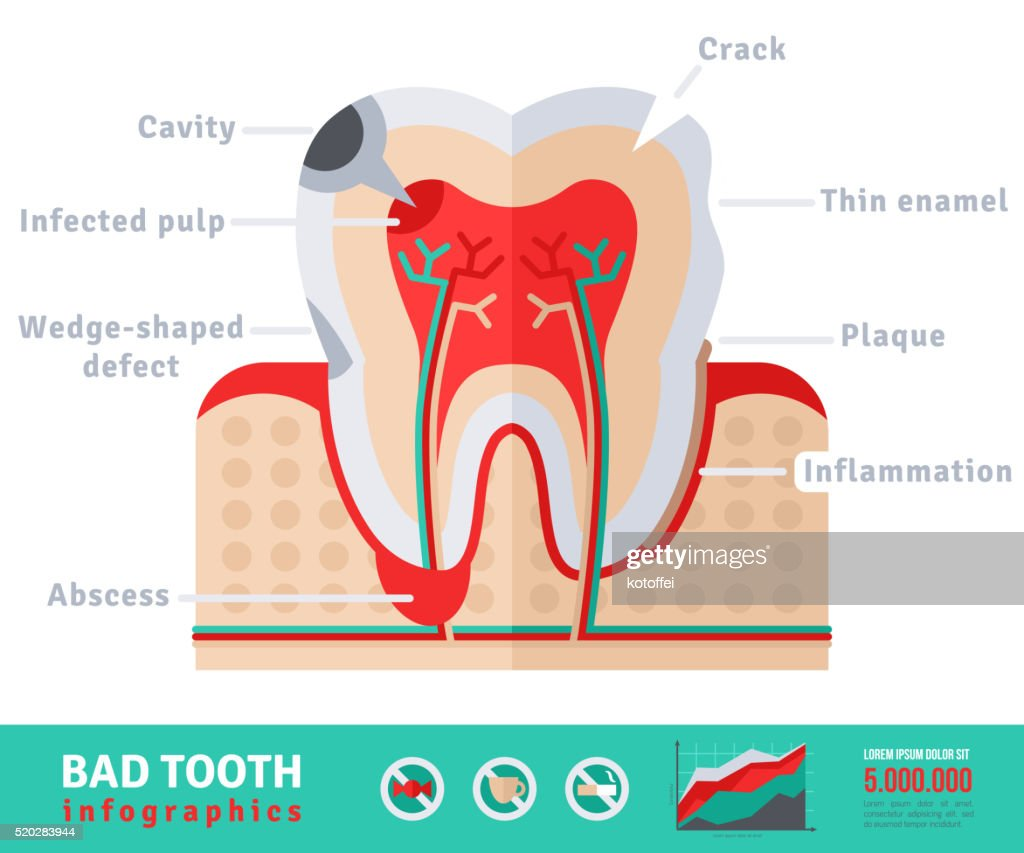 Bad Tooth Anatomy Flat Icon Concept Vector Art | Getty Images