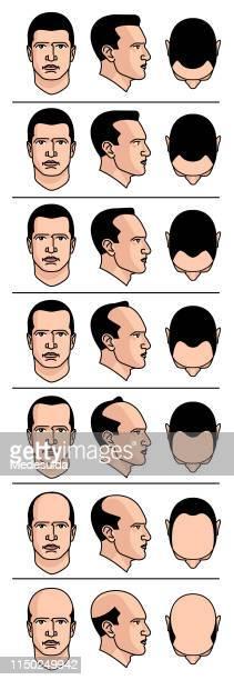 baldness diagram - dermis stock illustrations