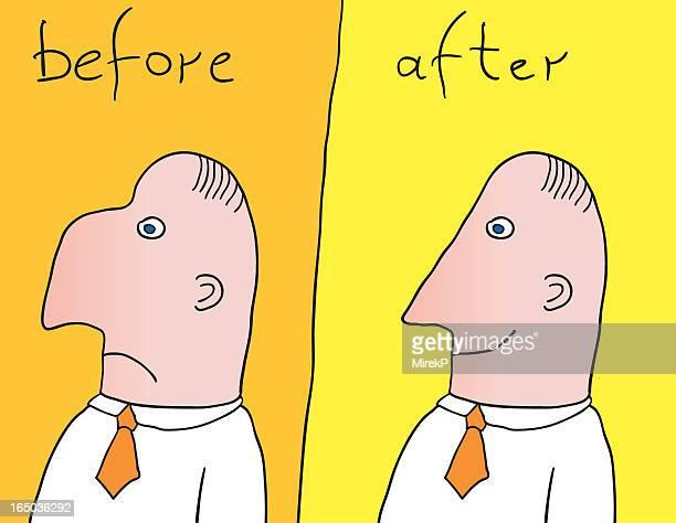 Antes de & após