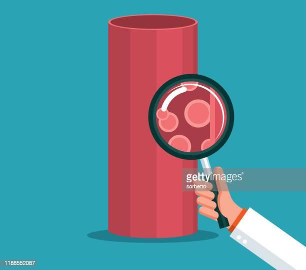 blood vessel - magnifying glass - hematology stock illustrations