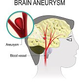 Blood vessels in the brain with aneurysm