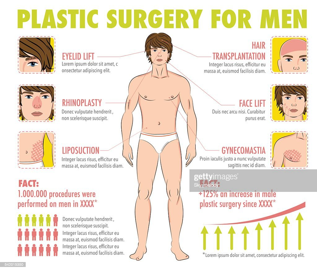 Body and face plastic surgery for men infographics