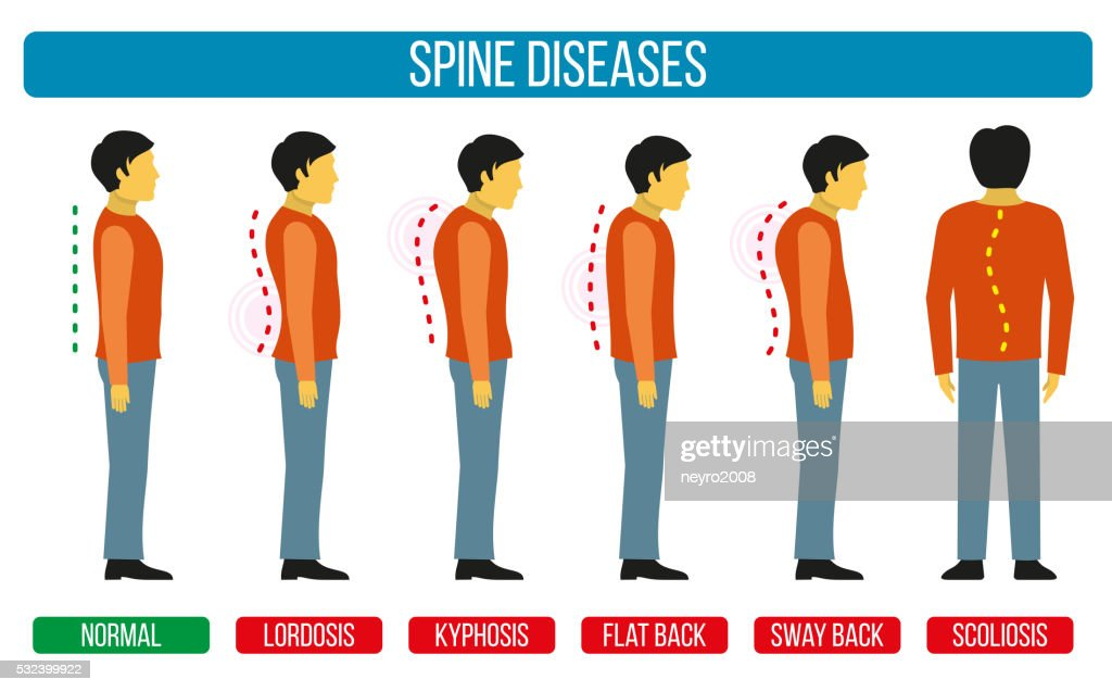 Body posture defect. Vector infographics of spine diseases