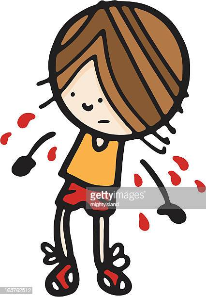 boy with arms falling off - broken arm stock illustrations, clip art, cartoons, & icons
