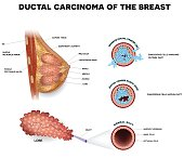 Breast cancer Ductal cancer in situ and invasive ductal cancer
