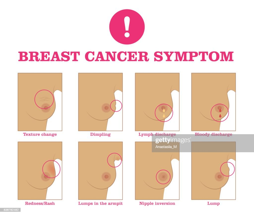 Breast cancer symptom