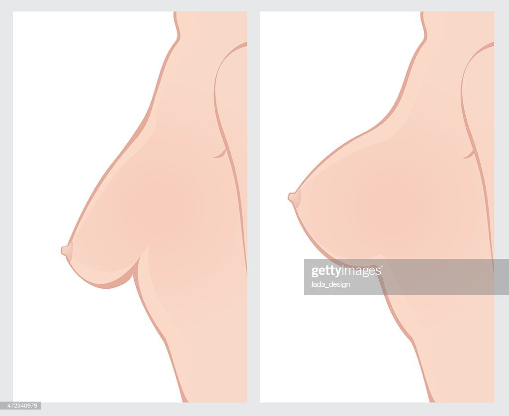 Breast Uplift before and after treatment