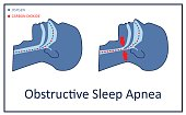 Breathing with apnea process