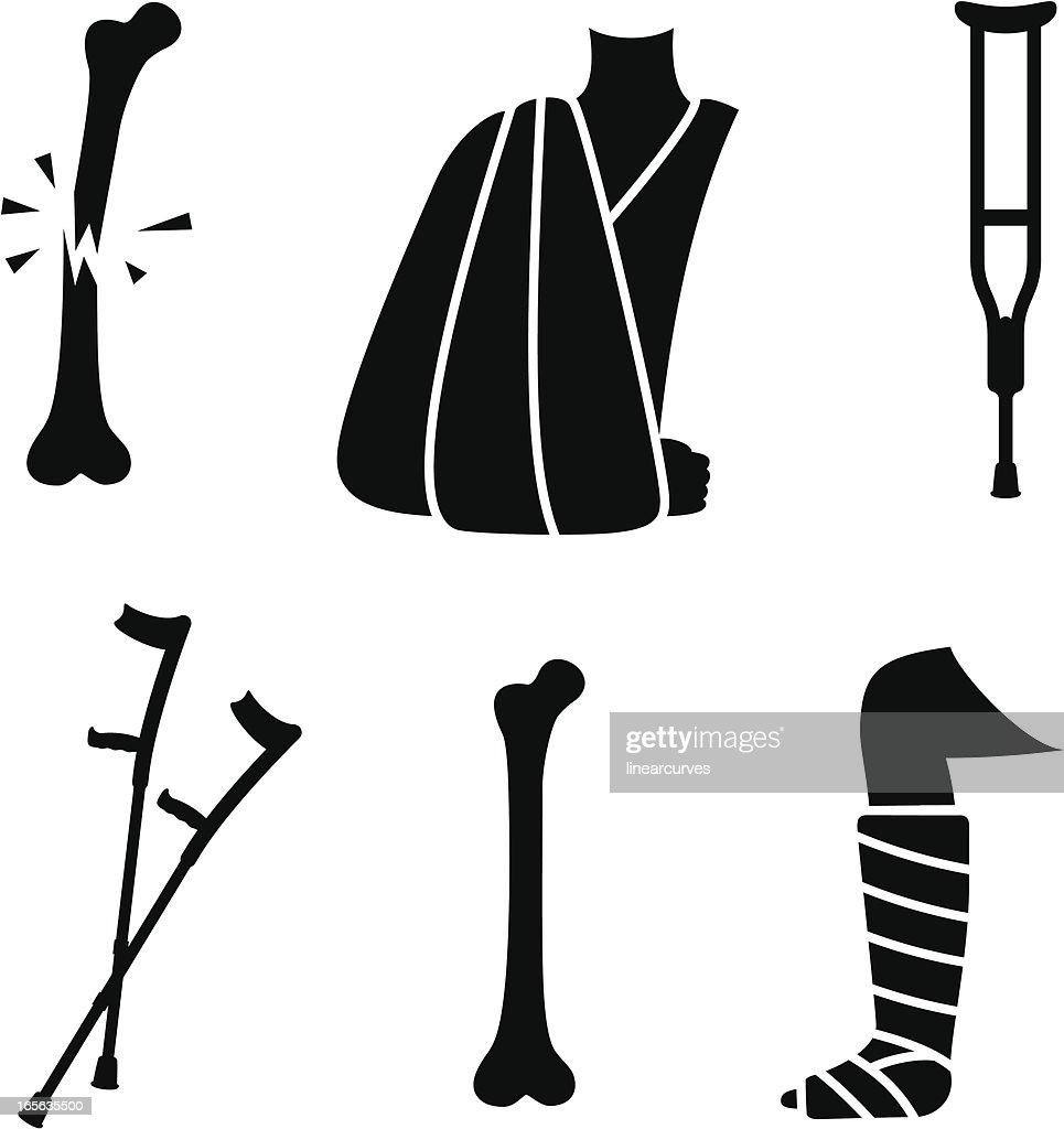 Broken bones and fracture treatment icons : stock illustration