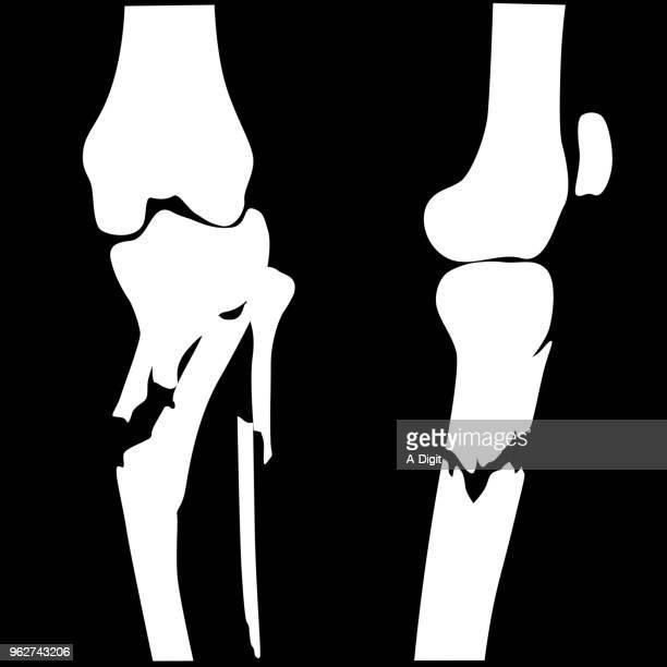 壊れた膝骨折 - 骨折点のイラスト素材/クリップアート素材/マンガ素材/アイコン素材