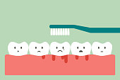 brushing teeth with bleeding on gum and tooth, gingivitis or scurvy concept
