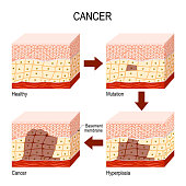cancer. from Normal cells to Mutation, Hyperplasia, and Malignant tumor. Neoplasia.
