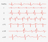 Cardiogram, heart red rhythm on monitor screen