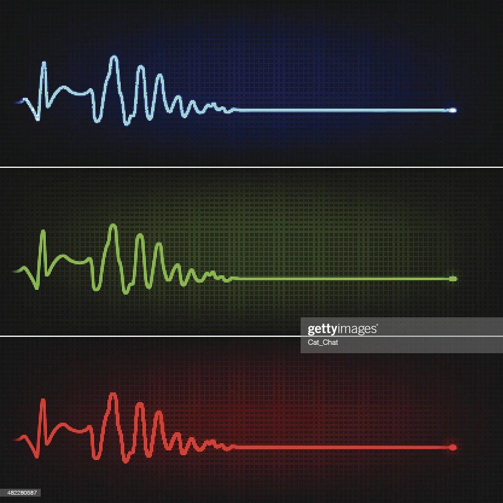 Cardiogram of heart stop