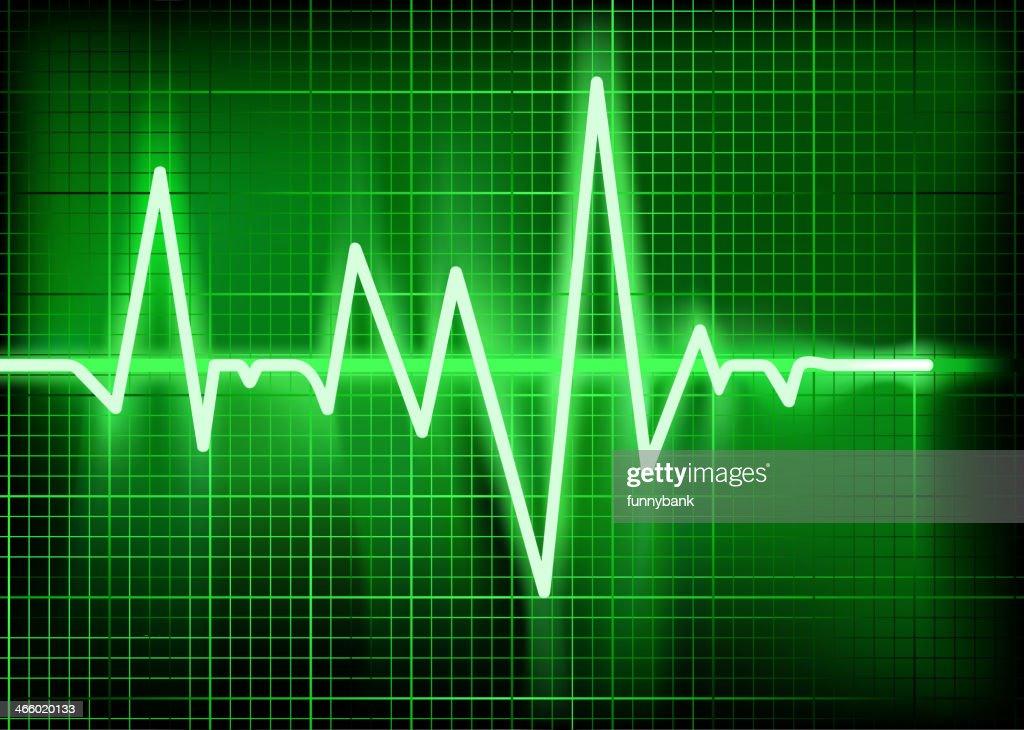 cardiogram : Vector Art