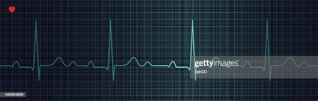 En el electrocardiograma : Ilustración de stock