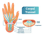 Carpal tunnel vector illustration scheme. Medical labeled diagram closeup with muscle, transverse carpal ligament, median nerve, tendon sheath, flextor tendons and bones.
