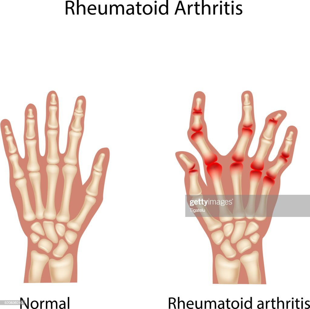 Cartoon illustration of Rheumatoid Arthi