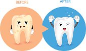 Cartoon tooth character before and after.
