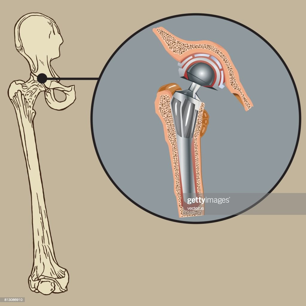 Cementless Arthroplasty Prosthesis