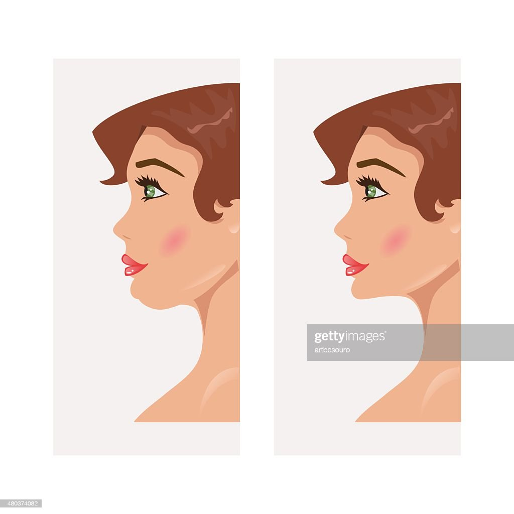 Chin before and after plastic surgery. Vector Illustration
