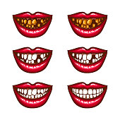 A collection of pop art icons of red female lips - smiling, with missing teeth, with spoiled teeth