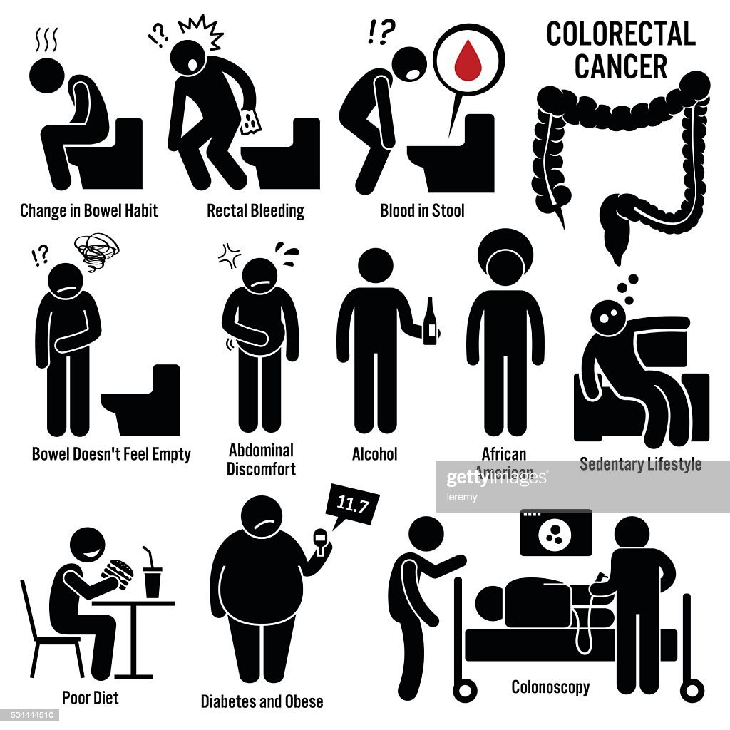 Colon Rectal Colorectal Cancer Illustrations