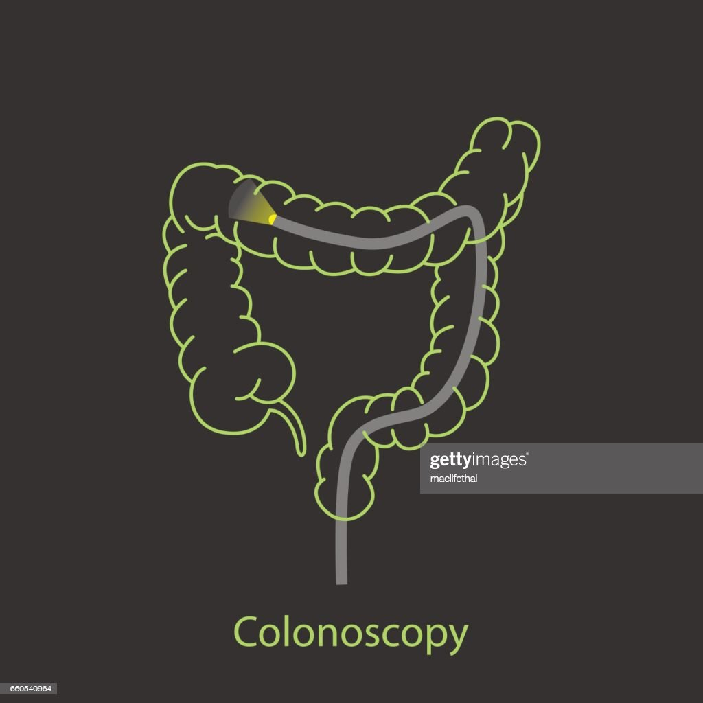colonoscopy logo vector icon design