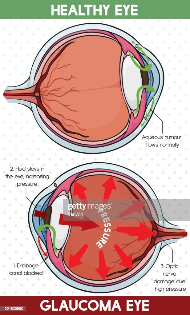 Comparative Information Between Healthy Eye and Glaucoma Eye
