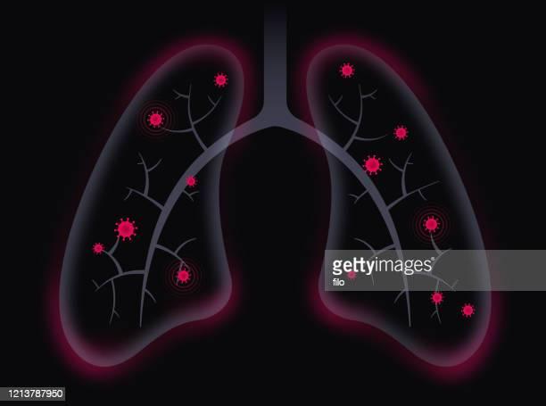 coronavirus covid-19 respiratory lung disease - respiratory disease stock illustrations