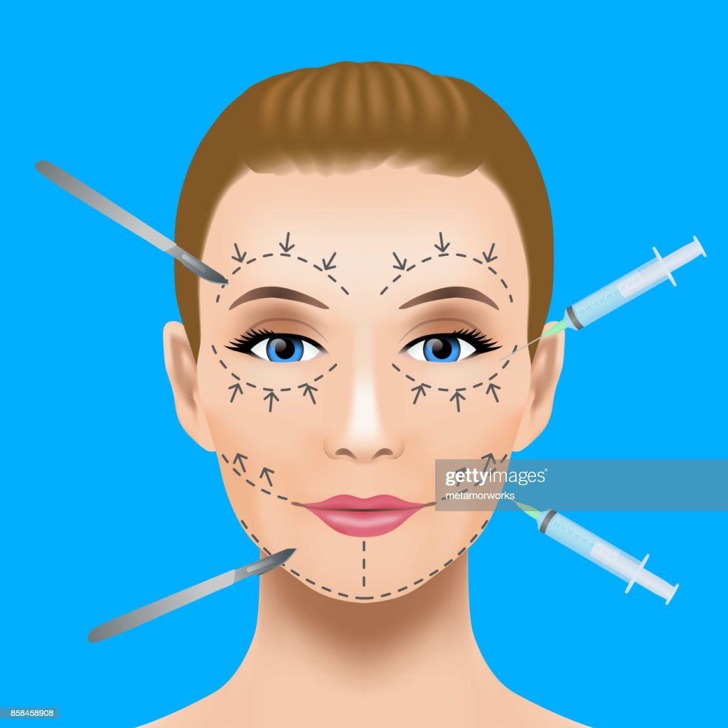 Cosmetic surgery concept. Botox injection. woman facial wrinkle treatment.