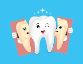 Cute cartoon whitening tooth holding tear of unhealthy tooth.