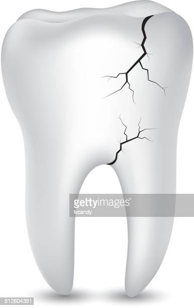 damaged tooth - cracked stock illustrations, clip art, cartoons, & icons