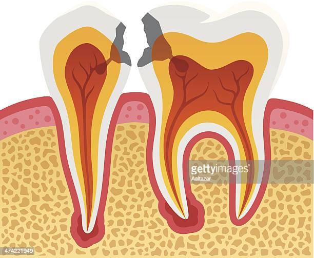 dental cavities - molar stock illustrations