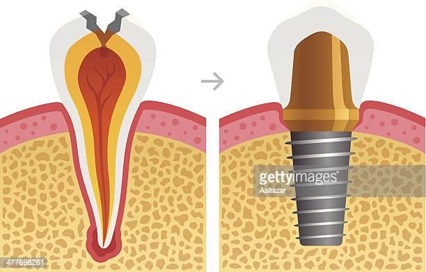ilustraciones, imágenes clip art, dibujos animados e iconos de stock de carie dental fija con implante - dientes humanos