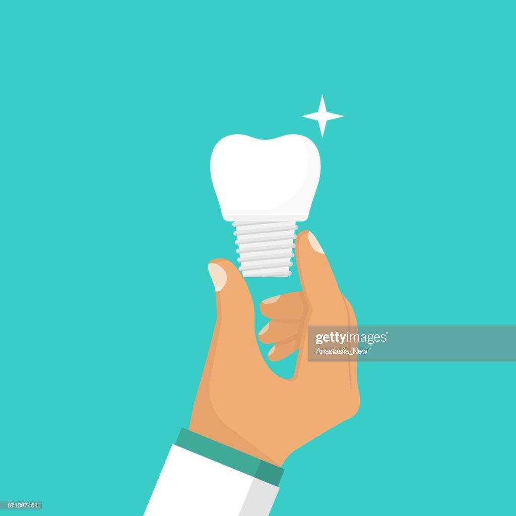 Dental implant in hand dentist