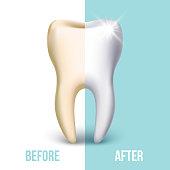 Dental veneer, teeth whitening vector concept