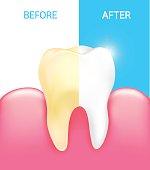 Dental veneer, tooth before and after.