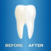 Dental Veneer, Whitening Of Human Tooth, Whitening Toothpaste Isolated On A Background. Realistic Vector Illustration
