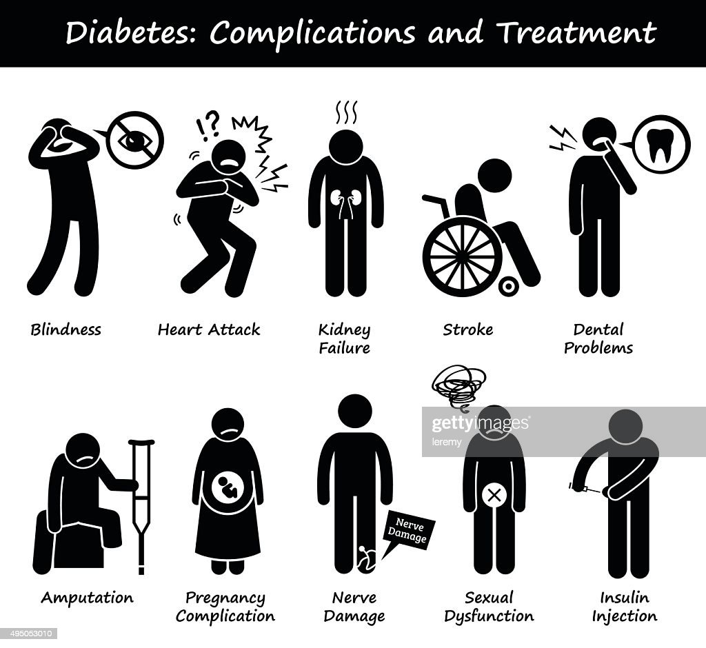 Diabetes Mellitus Diabetic High Blood Sugar Complications and Treatment