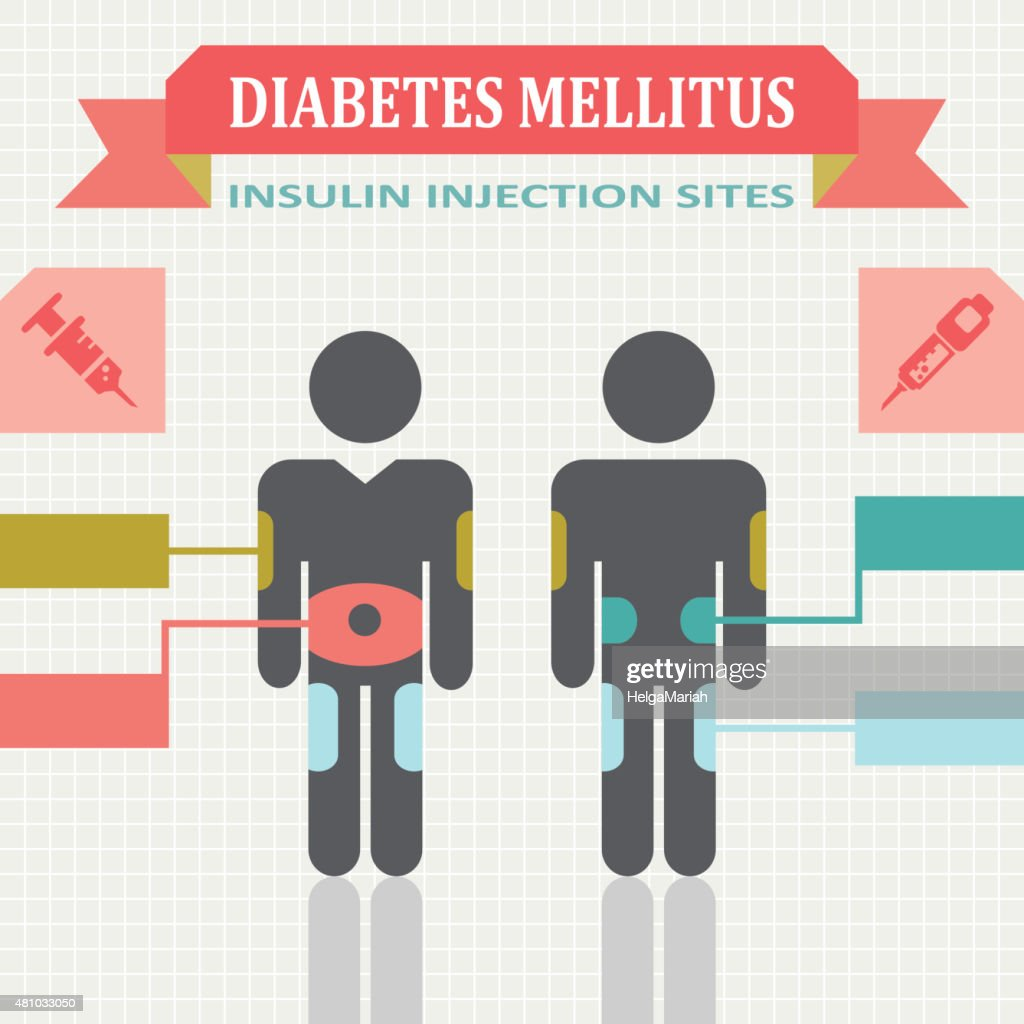Diabetic Sites: Diabetes Mellitus Infographic With Insulin Injection Sites