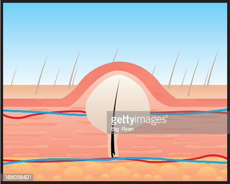 A Diagram Of Hair Growing Under The Skin Vector Art Getty Images