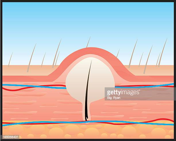 a diagram of hair growing under the skin - dermis stock illustrations