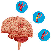 Diagram showing problems with brain