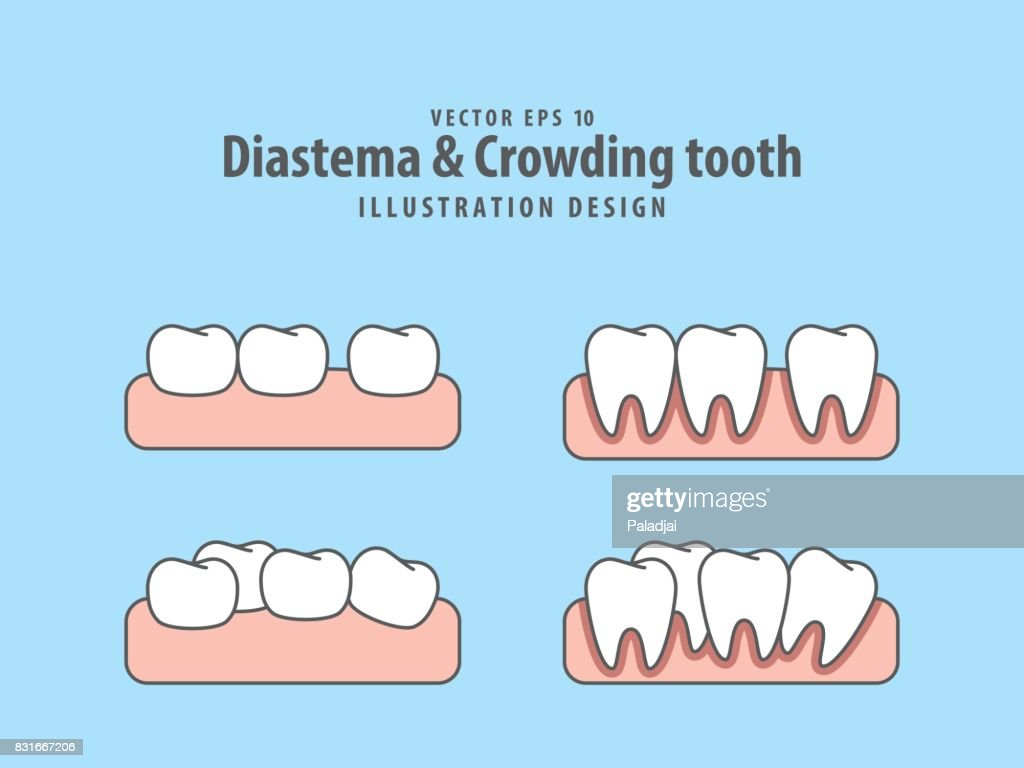 Diastema & Crowding tooth illustration vector on blue background. Dental concept.