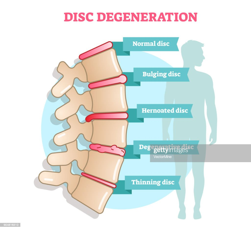 Disc degeneration flat illustration vector diagram with condition exampes - bulging, hernoated, degenerative and thinning disc.
