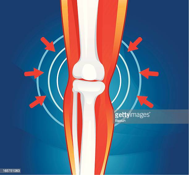 drawing representing pain in a joint - rheumatism stock illustrations